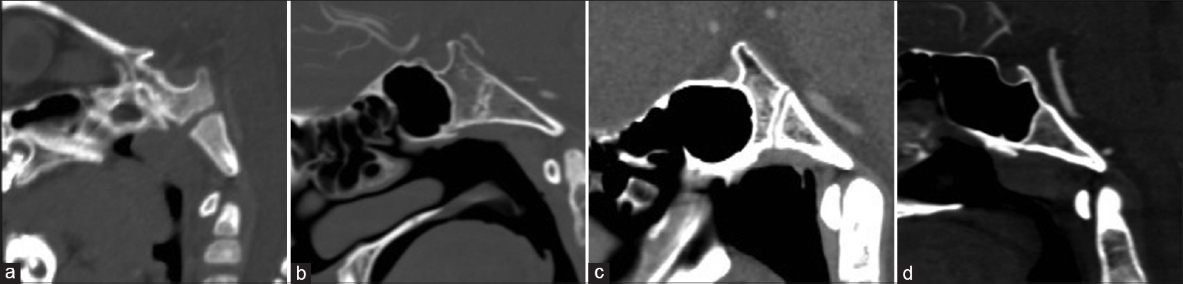 Figure 6: (a-d): Mid sagittal plane CT images show types of sphenoid sinus pneumatization. (a) No pneumatization (b) pre-sellar (c) sellar and (d) post-sellar types