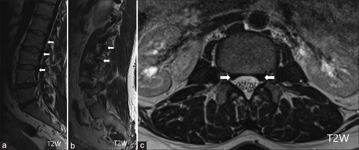 Figure 2: Case 2 Lumbar spine MRI: Sagittal T2WIs showing longitudinal serpentine flow voids located laterally along the length of the lumbar spine (arrows; a and b) and axial T2-weighed image with flow voids in the anterior epidural space (arrows; c)