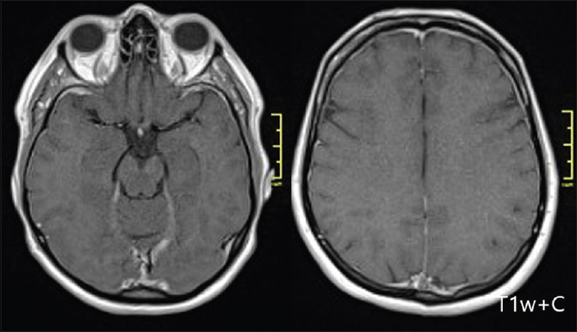 Figure 5: Case 3 a brain MRI showing features of intracranial hypotension—subtle thickening and enhancement of the pachymeninges
