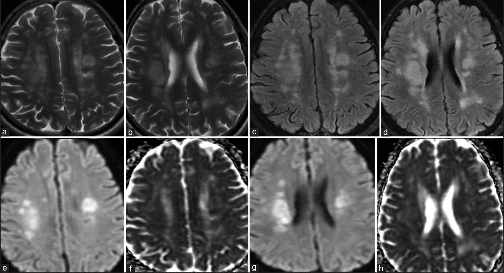 Figure 3: MRI brain of 19 year old male patient with fever, altered sensorium. The sensorium deteriorated on 8<sup>th</sup> day of onset of fever and MRI was acquired on 10<sup>th</sup> day after fever. Axial T2 (a and b) and FLAIR (c and d) images respectively which show multifocal fluffy T2/FLAIR hyper-intensities involving bilateral periventricular WM and fronto-parietal deep WM. Axial DWI (e and g, b = 1000) images and corresponding ADC maps (f and h) respectively showed presence of true diffusion restriction in the lesions