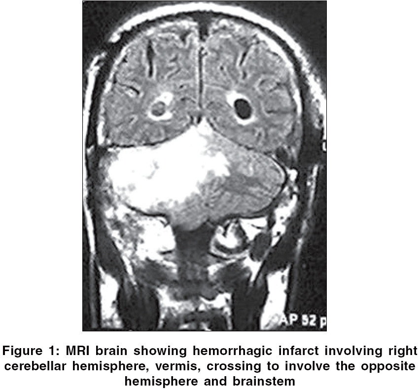 Infarction Brain Stem Brain Stem Infarction a