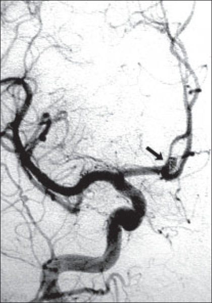 Figure 3: Angiogram two years later showing aneurysmal recurrence and coil mass at and beyond the dome (black arrow)