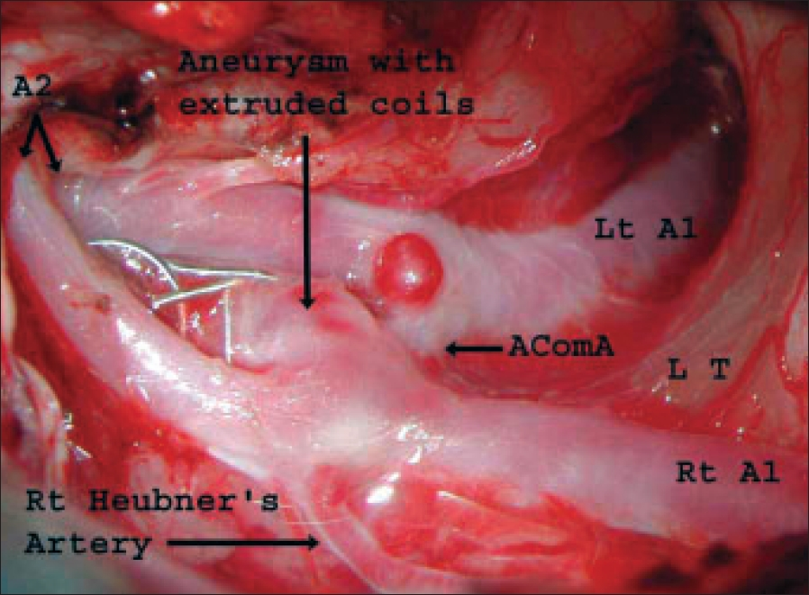 Figure 4: Intraoperative photograph depicting complete extrusion of coils from the aneurysm. LT- Lamina terminalis, AComA- Anterior communicating artery, A1- Anterior cerebral artery proximal to the origin of AComA, A2- Anterior cerebral artery distal to AComA
