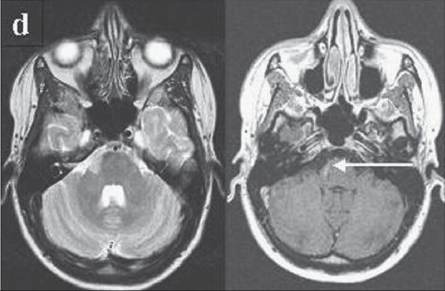 Figure 1: (d) Month 17, after treatment with cumulative doses of 20000 m methylprednisolone and 3000 mg cyclophosphamide: new gadolinium enhancing lesion on T1 weighted images in the brainstem (arrow). (1.0 T, FOV 230/1.2, TR (T1) 678, TR (T2) 5056), TE (T1) 15, TE (T2) 100)