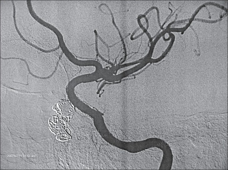 Figure 4: Left ICA angiogram after one year confirming obliteration of the aneurysm with no recanalization or stent stenosis