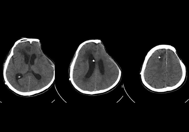 Figure 4: CT scans obtained after a ventriculoperitoneal shunt operation showing persistent multiple infarctions