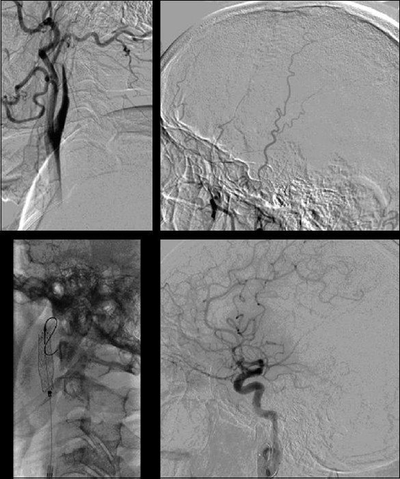 Figure 2: Top panel first image (from left to right) shows dissection of the LICA. Second image shows the absent intracranial flow. Bottom panel first image shows the deployed stent in the LICA. Second image shows the recanalisation of ACA and superior MCA division