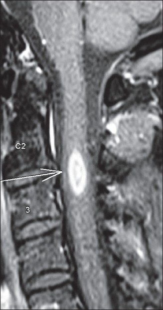 Figure 1: A 34-year-old male who presented with acute partial transverse myelitis had MRI cervical spine showing single linear enhancing lesion extending less than three vertebral segments. Within eight months he developed right optic neuritis and was labeled as multiple sclerosis