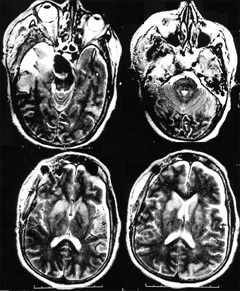Figure 2: Postoperative MRI showing the temporal polectomy and the bilateral caudate nuclei and ipsilateral thalamic infarcts