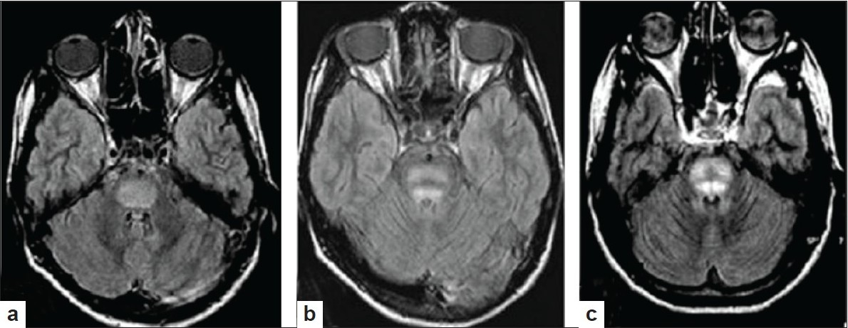 Figure 5 :MRI with three distinct patterns of central pontine myelinolysis observed in MRI (FLAIR axial sequence) of patients with Wilson's disease- (a) Classical: Hyperintensity of whole of the central pons sparing a peripheral rim; (b) Bisected pontine signal change by a horizontal line and; (c) Trisected: Pontine hyperintensity trisected by a hypointense line like 'Mercedes Benz' sign