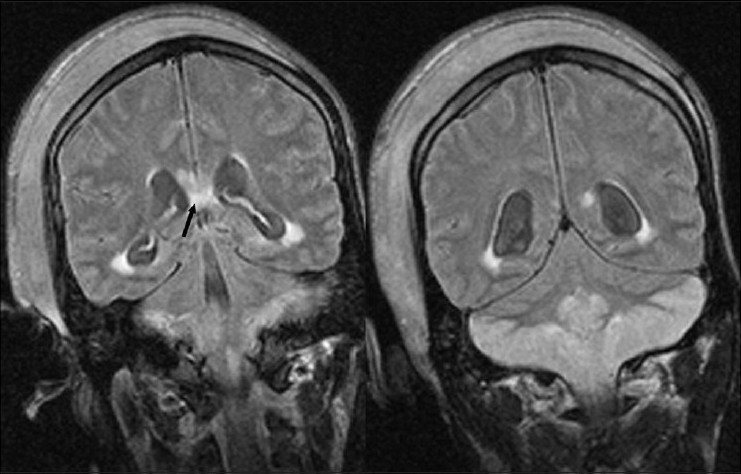 Figure 3 :Coronal FLAIR images showing the lesions in the cerebellar cortex and in splenium of corpus callosum (black arrows)