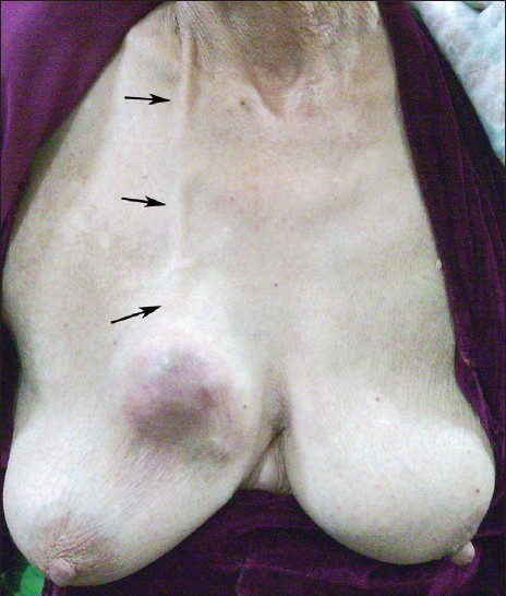 Figure 1 : Picture shows right breast lump with the proximal end of the VP shunt pulled subcutaneously (arrows)