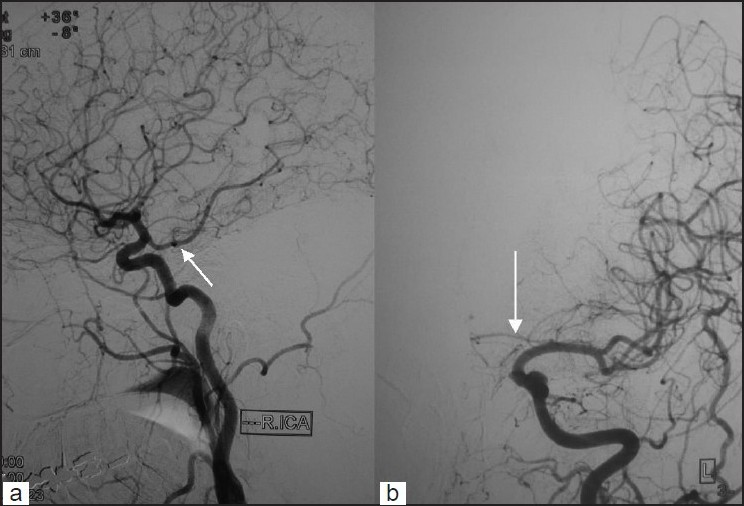Figure 2 :Digital subtraction angiography performed 20 days after presentation demonstrating (a) an embryonic derivation of the right posterior cerebral artery from the homolateral internal carotid artery and (b) a hypoplastic A1 part of the left anterior cerebral artery (arrows)