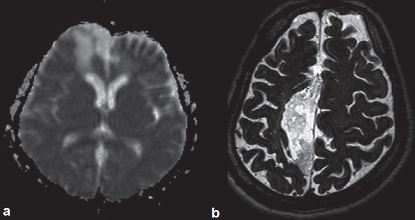 Interhemispheric epidermoids - An uncommon lesion in an