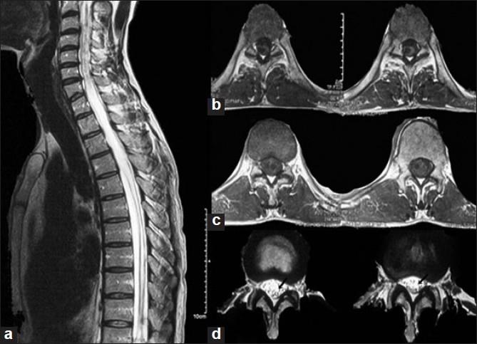 Arthritis Mri Spine Mri Spine Showing Long