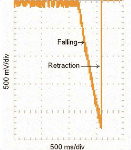 Figure 1: Graph shows the trajectory of the rod in the spinal cord impactor, when it is dropped and retracted to make a drop weight injury to the rat spinal cord. The graph shown is the position of the rod as detected using a displacement sensor