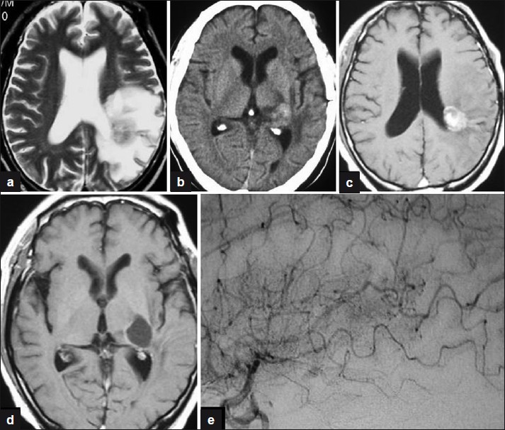 Figure 2: (a) T2-weighted magnetic resonance image (MRI) obtained 14 months after radiosurgery showing a small mass lesion close to the left lateral ventricle and white matter edema. (b) Computed tomography scan