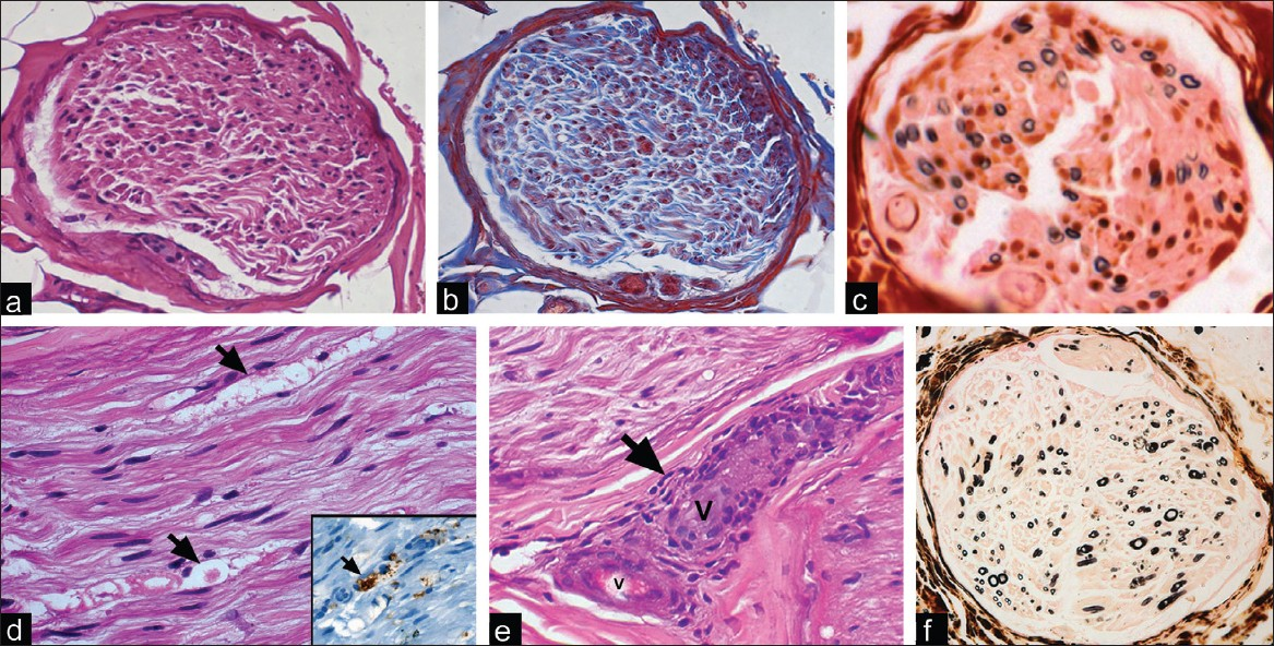 Figure 2: (a-c) Case 1: Transverse section of a nerve fascicle shows reduction in myelinated fiber density (a) with consequent fibrosis of endoneurium (b); myelin stains highlight significant myelinated fiber loss with minimal regeneration (c). (d-f) Case 2: Nerve biopsy shows endoneurial edema with axonal degeneration and myelin ovoids (d, arrow); inset shows macrophages scavenging degrading myelin (arrow). A large epineurial vessel (e) shows periadventitial infiltration by lymphomononuclear cells (arrow). Sectoral loss of myelinated fibers is evident in the upper quadrant of fascicle on myelin stains (f) (a: H and E ×80; b: Masson Trichrome stain ×80; c: Kulchitsky Pal ×160; d: H and E ×240; d, inset: CD68 immunostain ×240; e: H and E ×240; f: Kulchitsky Pal ×160)