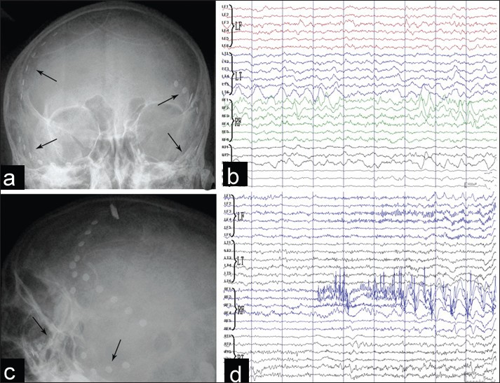 Figure 3: 24-channel cortex surface video electroencephalogram (EEG) recordings of Patient 3. (a and b) Position of the cortex surface electrodes. Arrows showed electrodes on the bilateral frontal and temporal lobes. (c) Inter-ictal EEG recordings were similar to those in the scalp video EEG. (d) Ictal EEG showed epileptic discharge started in the right frontal lobe, and spread to the left frontal lobe. Reference voltage was 300 ìV/cm