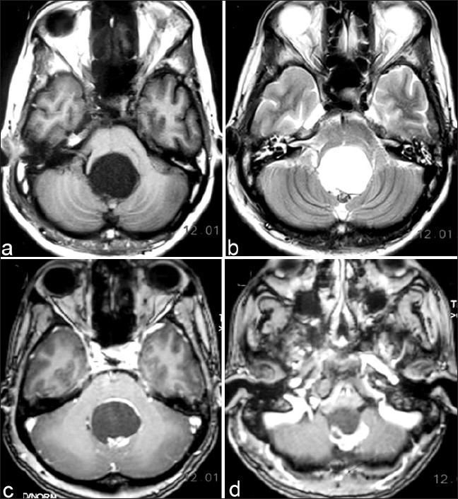 Figure 1: (a) T1 weighted magnetic resonance imaging scan of brain showing cystic hypoinense tumor with solid nodule isointense to cortex at periphery. (b) Magnetic resonance imaging of brain showing same cystic tumor hyperinsense on T 2 weighted scan with hypointense nodule. (c) Magnetic resonance imaging of brain showing dense contrast enhancement of solid nodule after gadolinium. (d) Contrast Magnetic resonance imaging of brain showing enhancing solid part of tumor at outlet of fourth ventricle