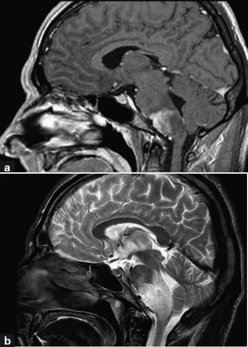 Figure 1: T1-weighted gadolinium-enhanced (a) and T2-weighted (b) MRI, showing tumor mass in the ventrocaudal pons and rostral medulla oblongata (a) with a diameter of 3.2 × 2.6 × 1.6 cm, surrounded by edema (b), suggestive of low-grade glioma