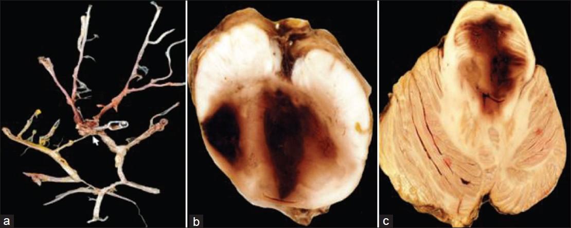 Brain Stem Hemorrhage Pdf Download chute ffshow logitheque reste,