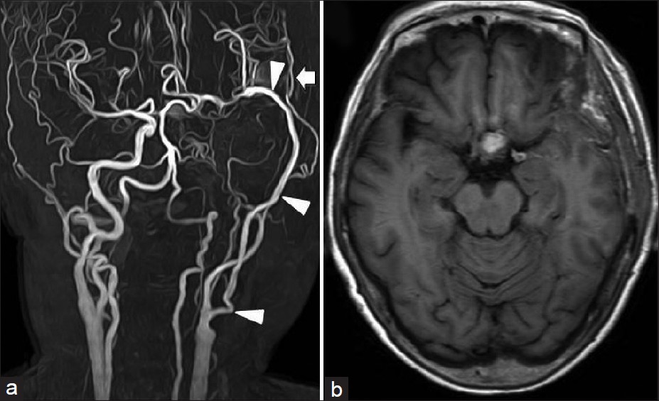 A surgical case of paraclinoid carotid aneurysm associated