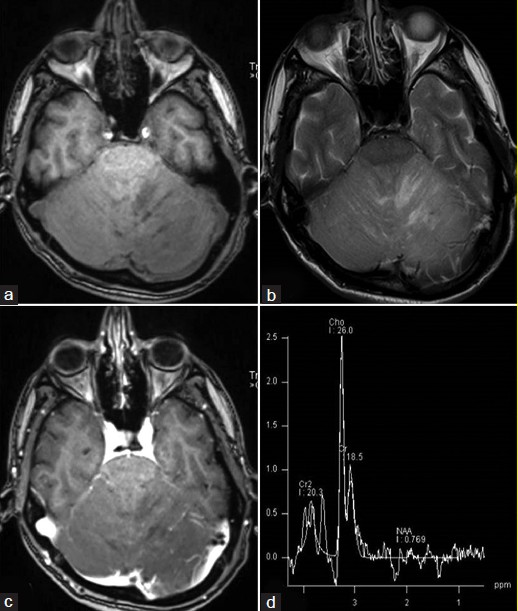 Figure 1: Cranial MR imaging reveals altered signal involving the cerebellar parenchyma with alternating bands of isointensity and hypointensity on T1, (a) and corresponding isointensity and hyperintensity on T2-weighted images, (b) Post gadolinium images (c) do not show any parenchymal enhancement but have linear hyperintensities along the sulcal space secondary to vascular congestion. Proton MR spectroscopy, (d) shows elevated choline with high Cho:NAA ratio