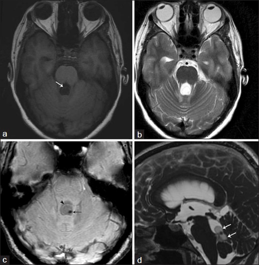 Figure 2: 35-year-old lady with presenting complaints of seizures, diplopia and vomiting. MRI performed on a 3T scanner (Signa HDxT®, GE Healthcare, Milwaukee, Wisconsin) (a) T1-weighted sequence shows a suspicious cystic lesion in the fourth ventricle (arrow) (b) However, no cystic lesion is appreciated on the corresponding T2-weighted image (c) Axial SWAN sequence depicts a cyst (arrowhead) with an eccentric scolex (arrow) (d) Sagittal FIESTA sequence also clearly demarcates the cyst (arrows) and scolex