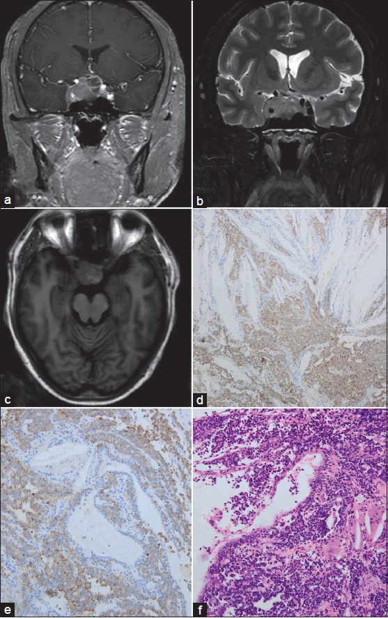 Figure 2: Preoperative MRI scan (a, b, c) and histological findings (d) of case 2. Multilocular RCCs (e,f) and cholesterin (d) were embedded  in the pituitary adenoma lesion (d, e, f), the adenoma cells were positive for CgA