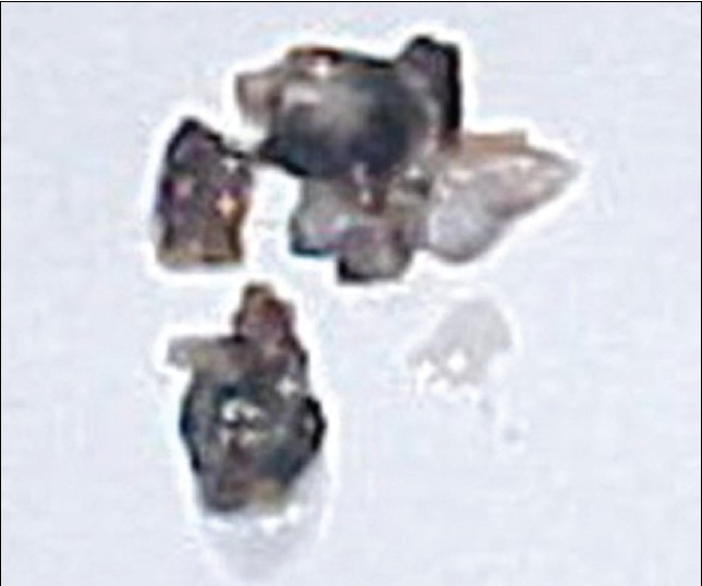 Figure 3: Degenerated disc material with pigmentation