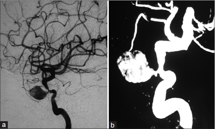 Figure 2: Cerebral angiography shows an irregular pseudo-aneurysm at the cavernous part of the right internal carotid artery, both on digital subtraction angiography (a) and reconstructive imaging (b) The neck of the pseudo-aneurysm is approximately 3.2 mm in diameter