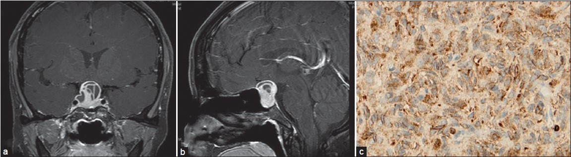Figure 1: (a) and (b) revealed heterogeneous contrast enhancement of the lobular tumor (c) Strong immunoreactivity for bcl-2 (�0)