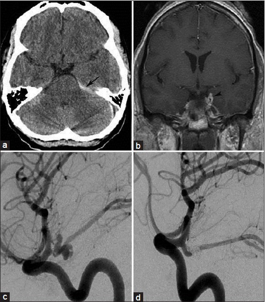 Figure 1: (a) Computed tomography scan showing left sided tentorial subdural hemorrhage along the petroclinoidal ligament and tentorial surface. (Arrow). (b) The magnetic resonance imaging brain contrast coronal image showing the left posterior communicating artery aneurysm. (Arrowhead). (c) Digital subtraction angiography oblique projection revealing a bilobed posterior communicating artery aneurysm and (d) follow up angiogram post coil embolization at 6 months