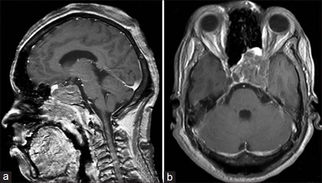 Figure 1: Postcontrast MRI of head (a) Sagittal section showing the tumor in clivus, sphenoid sinus, ethmoid sinus, nasopharynx, nasal cavity and sella. (b) Axial section showing the tumor in sphenoid, cavernous sinus, and orbit apex