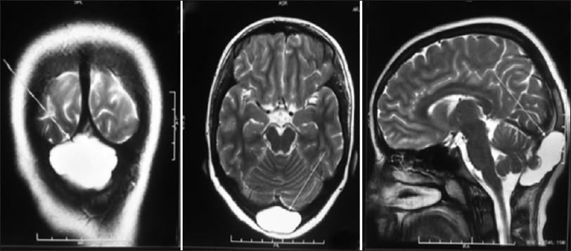 a rare case of non-traumatic intradiploic arachnoid cyst garg k, Human Body