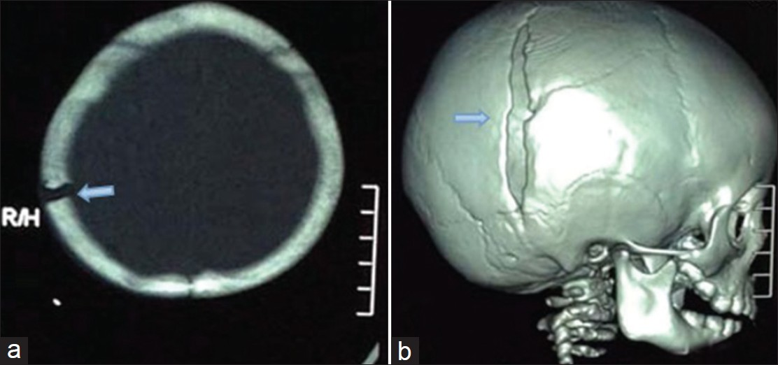 fractured skull from fall