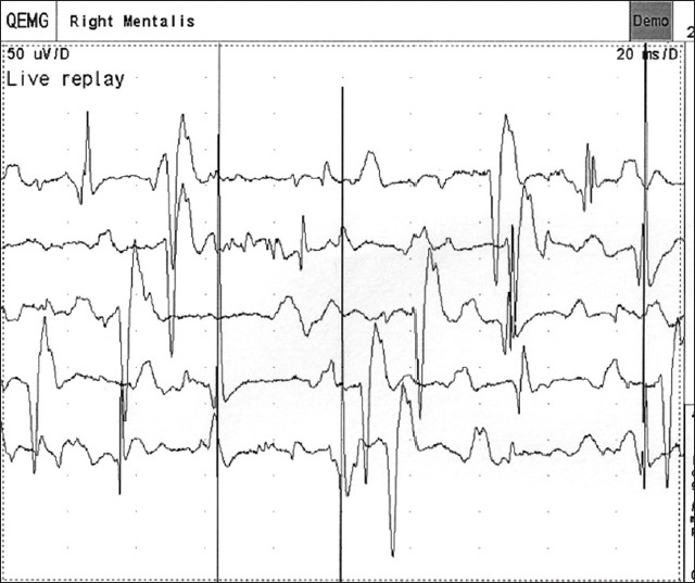 Figure 2: Electromyography of mentalis shows fasciculations and fibrillations