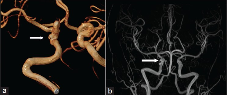 Magnetic resonance angiography diagnosis of infundibula ...