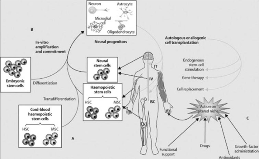 Clinical Relevance Of Stem Cell Therapies In Amyotrophic