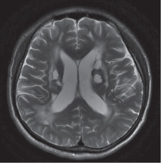 Figure 2: T2-FLAIR image shows multiple ischemic lesions in bilateral basal ganglia