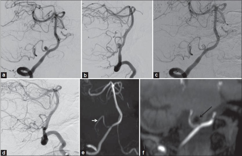 Figure 1: (a and b) Oblique and lateral DSA images of right vertebral artery angiogram showing a 6 mm sized narrow neck aneurysm arising from proximal PICA just after its origin. (c and d) Post coiling DSA images showing complete occlusion with preserved fl ow in PICA. (e and f) Follow-up MRA images after 1 year show stable occlusion of the aneurysm with good fl ow in PICA (white arrow in