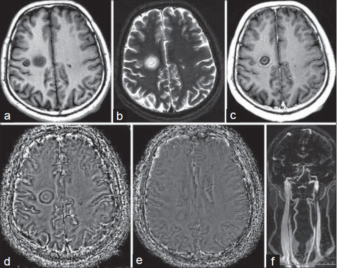 Figure 1: (a) Axial T1–WI shows two lesions with typical concentric pattern in the right centrum semi-oval, coexisting with plaque-like lesions in the left centrum semi-oval (arrows) and in the supratentorial right white matter area (b) Axial T2-WI shows two lesions with typical concentric pattern in the right centrum semi-oval, coexisting with plaque-like lesions in the left centrum semi-oval (arrows) and in the supratentorial right white matter area (c) The bigger larger lesion displays ring enhancement with Gd-DTPA (d) The bigger larger lesion shows altering isointensity and hypointensity concentric rings (e) The deep medullary veins in right side decrease in the minIP on ESWAN (f) Volumetrically reconstructed coronal 3D-TRICKS image shows absence of left internal jugular veins (arrow)
