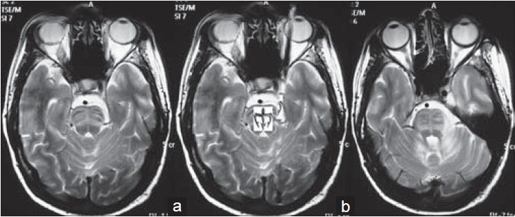 Figure 1: (a) MRI brain T2 axial section showing hyperintense signals predominantly involving transverse pontine fibres at upper pons resulting in an 'Inverse trident' sign (b) MRI brain T2 axial section showing 'Hot-cross bun' sign at lower pons and asymmetrical hyperintense signals in left inferior cerebellar peduncle