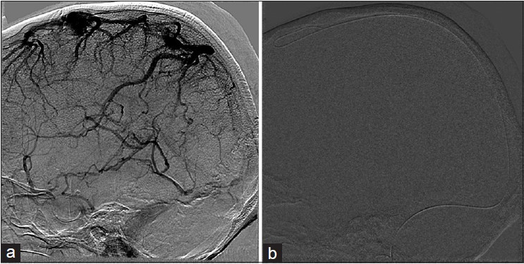 Figure 2: (a) ICA angiogram venous phase showing hanging veins appearance of the cortical veins and thrombosis of SSS, straight, and lateral sinuses. (b) Mechanical clot maceration with glidewire. ICA = Internal carotid artery, SSS = superior sagittal sinus