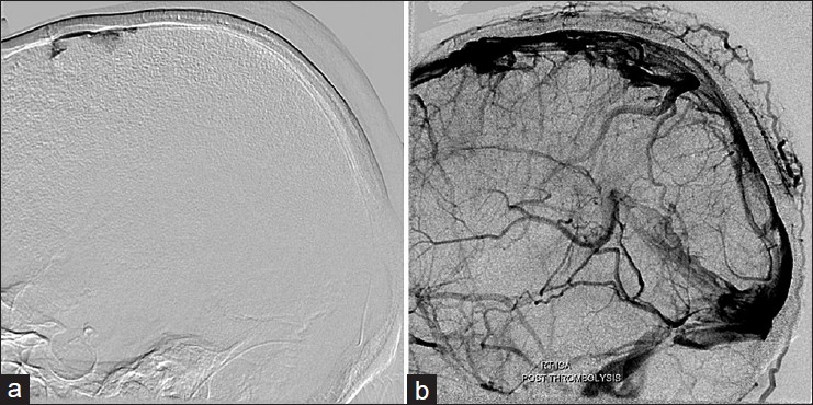 Figure 3: (a) Microcatheter in dural sinus showing stasis of contrast. (b) Post thrombolysis complete resolution of cortical and venous sinus thrombosis