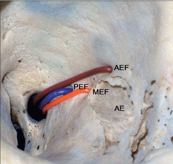 Figure 2: Course of the ethmoidal artery in orbit. The brown line represents the course of the anterior ethmoidal artery entering into the ethmoid sinus through the anterior ethmoidal foramen. The orange line indicates the course of the middle ethmoidal artery entering into the ethmoid sinus through the middle ethmoidal foramen. The blue line represents the posterior ethmoidal artery entering into the ethmoid sinus through the posterior ethmoidal foramen. PEF, posterior ethmoid foramen. AEF, anterior ethmoid foramen. MEF, middle ethmoid foramen. AE, anterior ethmoid sinus