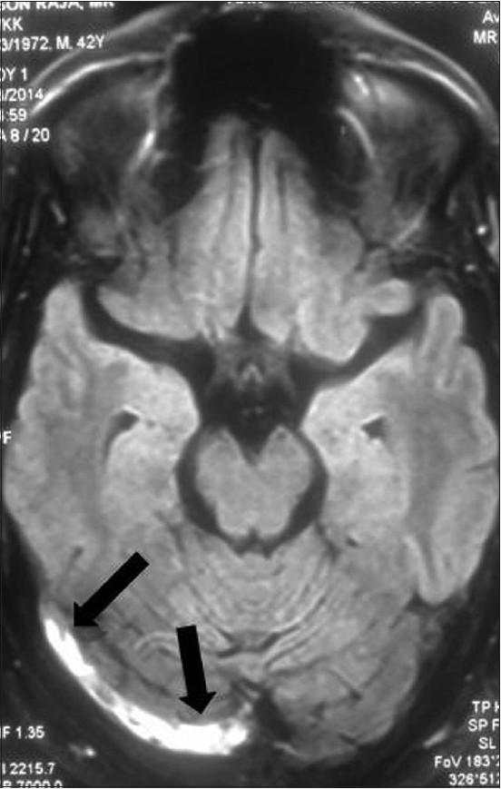 anticoagulation guidelines cerebral sinus thrombosis