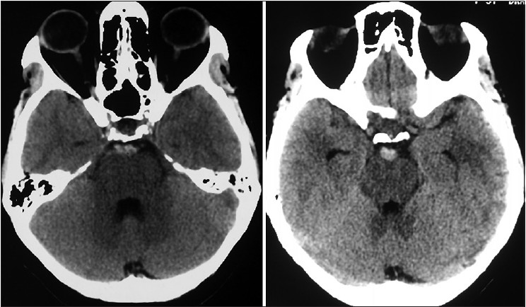 Figure 1: Non-contrast CT brain showing subarachnoid hemorrhage in perimesencephalic cisterns