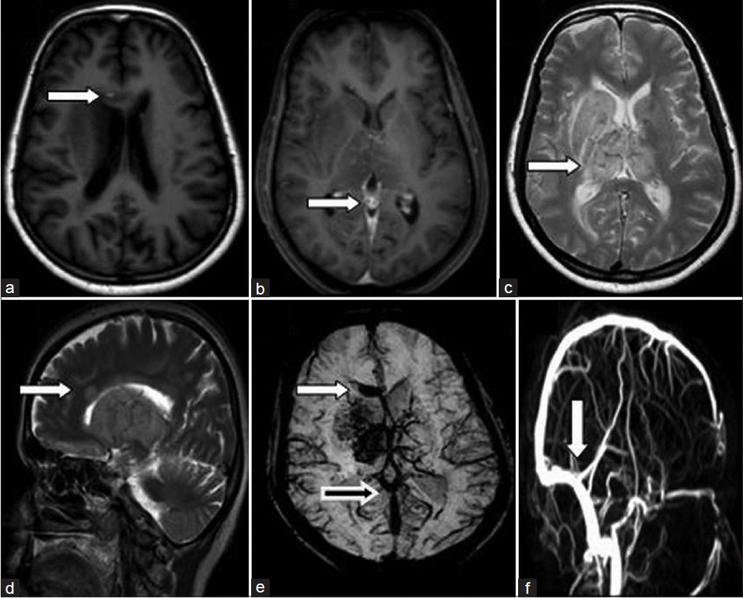 Corpus callosal hemorrhage due to deep cerebral venous sinus ...